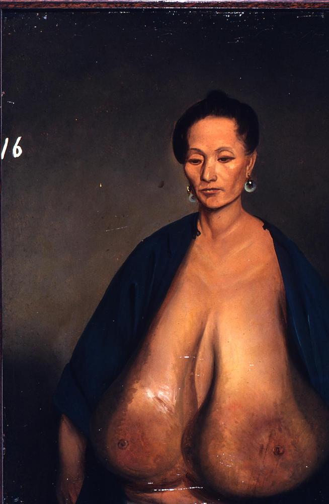 1848_lam_aua_hypertrophy