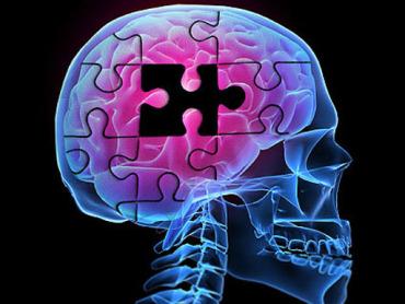 Alzheimers-brainpuzzle-512_370x278
